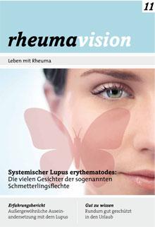 rheumavision11