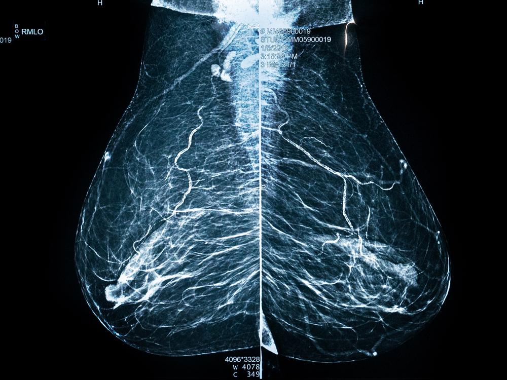 Brustdiagnostik-MEDIZINICUM-Radiologie