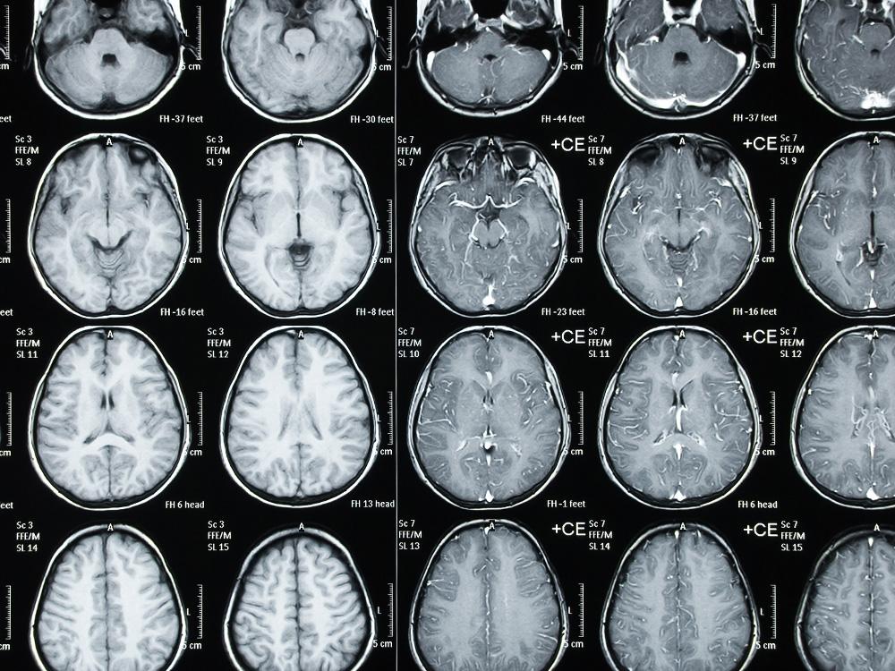MEDIZINICUM-Radiologie-CT-3