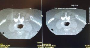 190116-Vergleich-CT-Aufnahmen