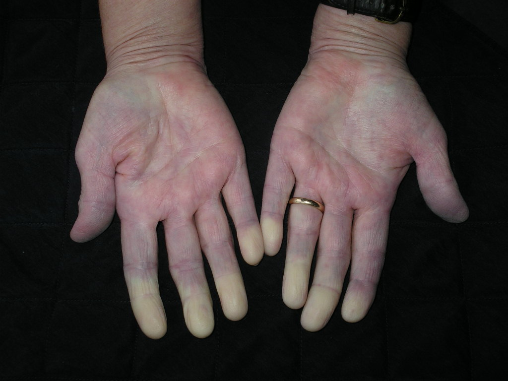 Sklerodermie-Raynaud-Syndrom-MEDIZINICUM