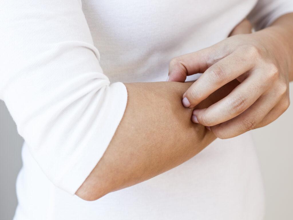 MEDIZINICUM-Dermatologie-Eidelstedt-